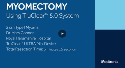 Myomectomy Using TruClear™ ULTRA Mini Device [Watch Now]