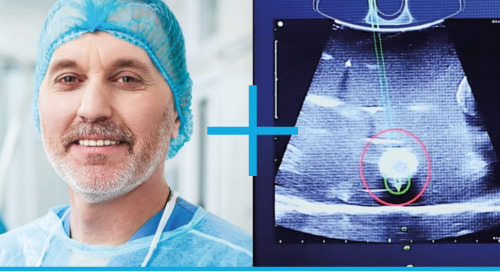 Emprint™ SX Ablation Platform with Thermosphere™ Technology Brochure