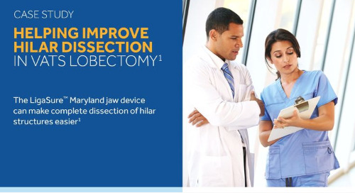Case Study: Use of Ligasure™ Maryland Jaw Device for Hilar Dissection in VATS Lobectomy