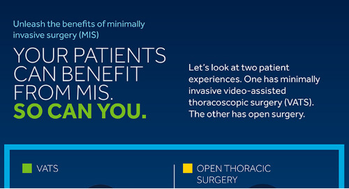 Infographic: The Benefits of Minimally Invasive Thoracic Surgery