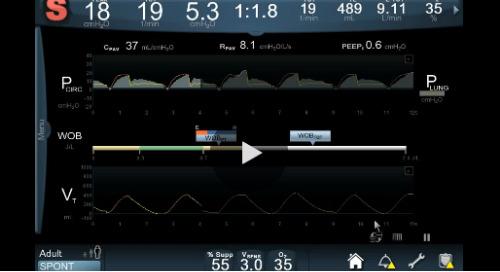 Demo Video: Puritan Bennett™ 980 Ventilator with PAV+™ Software