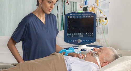 High-Acuity Ventilator Cost Guide