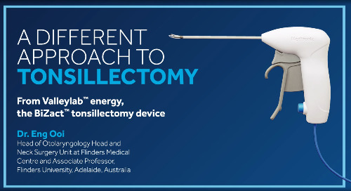 BiZact™ Tonsillectomy Procedure