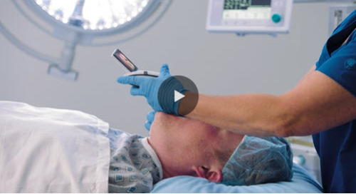 Why Choose the McGRATH™ MAC Video Laryngoscope? Dr. Karen Phillips Explains.