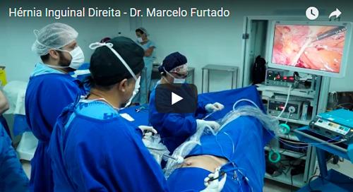 HERNIOPLASTIA INGUINAL DIREITA REALIZADA PELO DR. MARCELO FURTADO