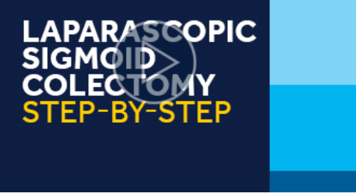 Laparascopic Sigmoid Colectomy, Step-by-Step