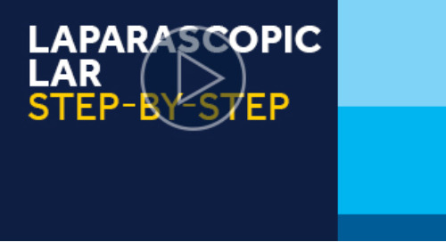 Laparascopic LAR Step-by-Step