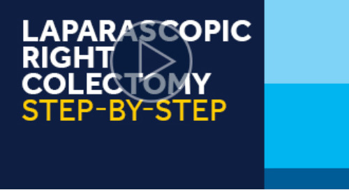 Laparascopic Right Colectomy Step-by-Step