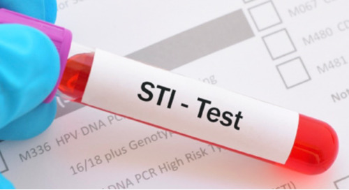 Increasing STI Screening Coverage by Focusing on the End Users: Clinicians and Patients