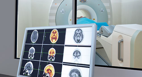 Graphics, Memory Add Insight to Medical Imaging