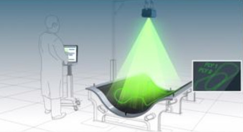 How laser templating tech supports the composites industry