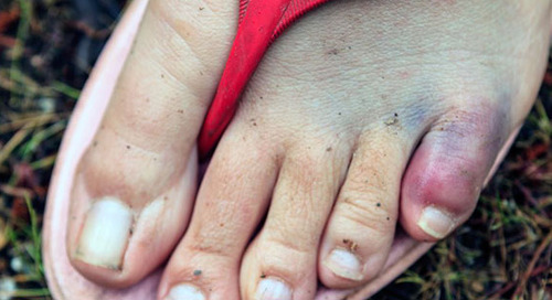 Stubbed your toe? It may be more serious than you think