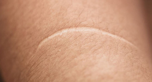 The Scoop on Scars and How to Treat, Minimize and Conceal Them