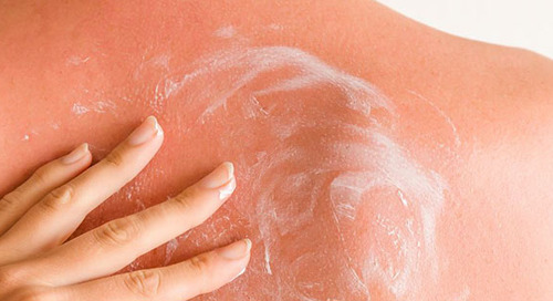 How To Soothe Sun-Damaged Skin
