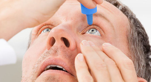 Soothing Solutions for Dry Eyes