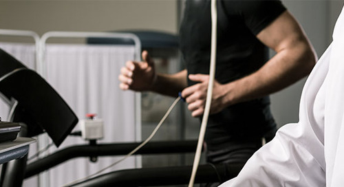 When should you have a cardiac stress test?