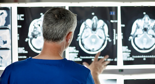 Are You Too Young for a Stroke? Know the Signs and Symptoms.