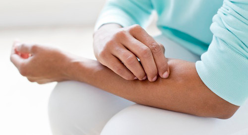 Lupus series: Types, triggers and risk (it's higher for women)