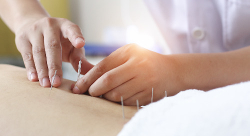 Acupuncture: Holistic, scientific or both?
