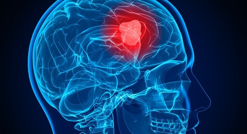 "St. Jude Offers ""Game Changing"" Surgical Technique for Malignant Brain Tumors"