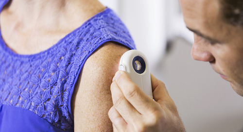 How to be on the lookout for basal cell carcinoma