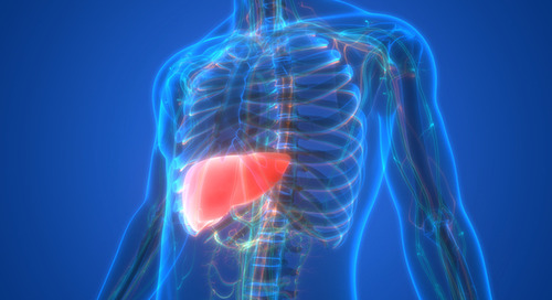 What you need to know about fatty liver disease and how to prevent it