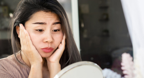 Dark circles under your eyes: When did those show up?