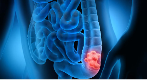 Preventing Death from Colorectal Cancer