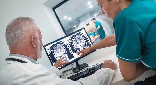 Stroke in younger adults: The risks and signs