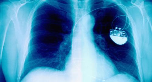 High tech equipment helps in heart surgeries