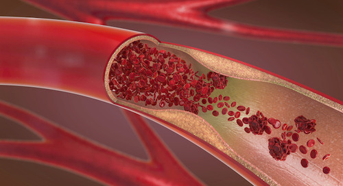 How common are blood clots? A Providence heart specialist weighs in