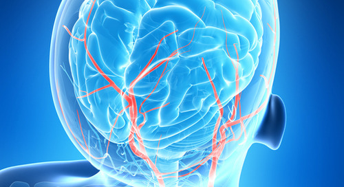 Extra prevention from stroke during heart procedures