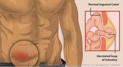 Learn more about hernias and how to treat them