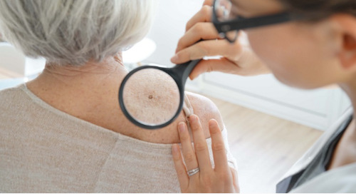 Skin Cancer Prevention: Q&A: An Ounce of Prevention...