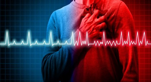 AFib awareness: Learn about risks, treatments and the latest research