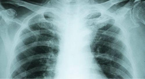 Failure to diagnose pulmonary embolism