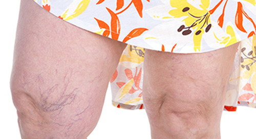 What can you do about varicose veins?