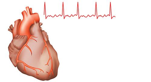 Atrial Fibrillation Awareness
