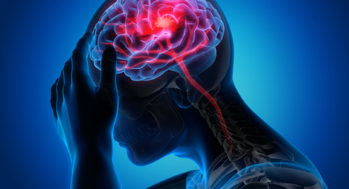 Signs of a stroke and actions you should take