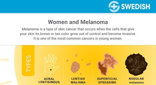 Are you one of the millions of women at risk for melanoma?