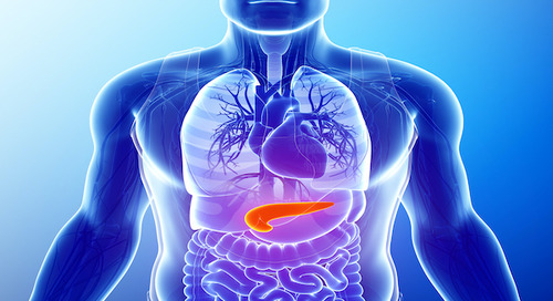Pancreatic cancer doesn't always show symptoms right away