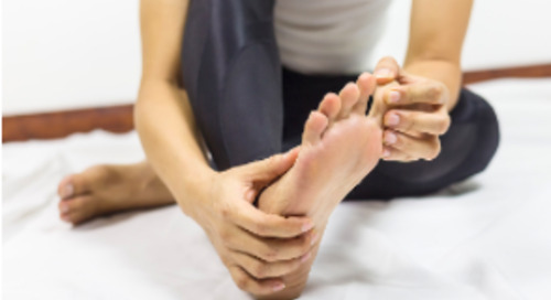 Covid Toes: What Are They and What Do They Mean