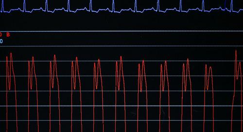 Analog Waveform Generation and Analysis