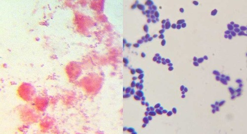 How to prepare a gram stain slide
