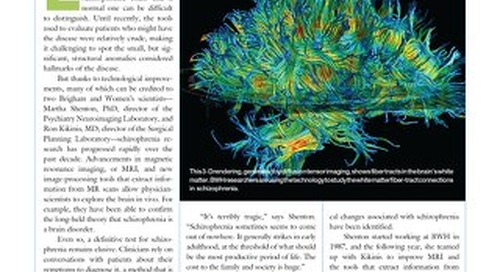 BWH Magazine (Winter 2007) - Seeing Schizophrenia's Subtleties