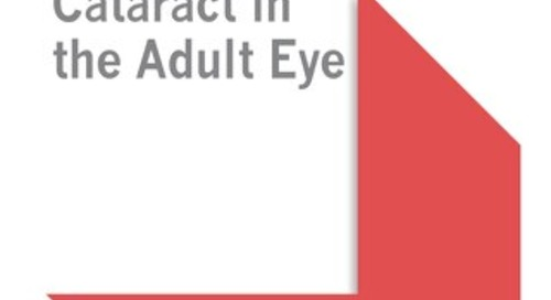 Cataract in the Adult Eye