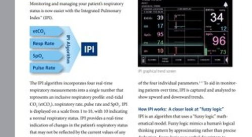 Integrated Pulmonary Index™ (IPI) Algorithm