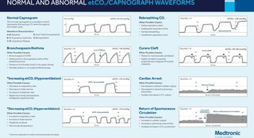 Poster: Normal and Abnormal etCO2/Capnograph Waveforms