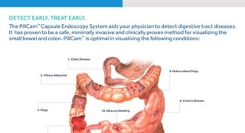 Pillcam™: The Gold Standard in Capsule Endoscopy