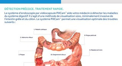 PillCam : La norme d'excellence en endoscopie par vidéocapsule